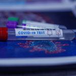 ¿Qué test de coronavirus me conviene más para Navidad? Diferencias entre PCR,  Antígenos y Anticuerpos.